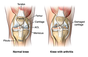 A normal knee and a knee with arthritis
